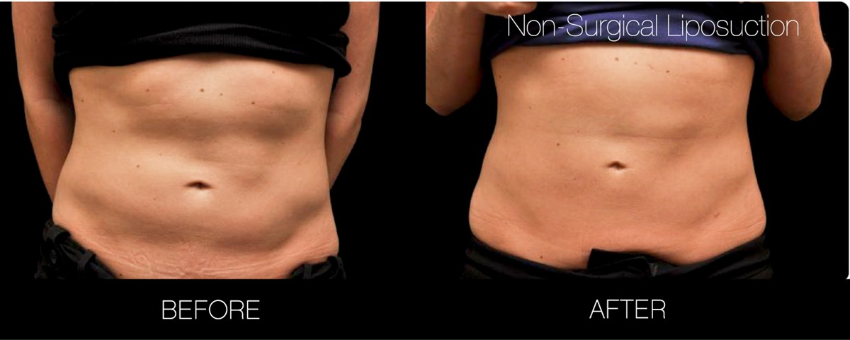 Non Surgical Liposuction in Toronto   Body Sculpting   SpaMedica