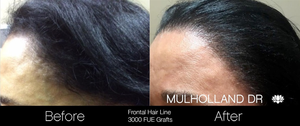 NeoGraft Hair Transplantation Procedure in Toronto | SpaMedica